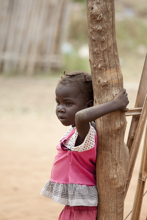 TORIT, SOUTH SUDAN-FEBRUARY 21, 2013: Unidentified child with signs of malnutrition in the town of Torit, South Sudan Editorial