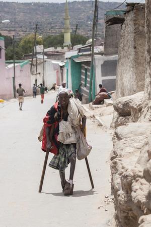 lepra: Harer, Etiopía 17 DE ABRIL DE 2015: el hombre no identificado con la lepra severa camina por las calles de Harar, Etiopía Editorial