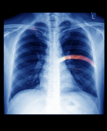 x ray skeleton: X-ray of the chest