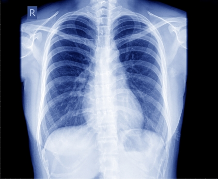 bronchus: X-ray of the chest