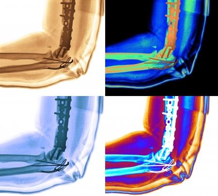 radiological: X-ray