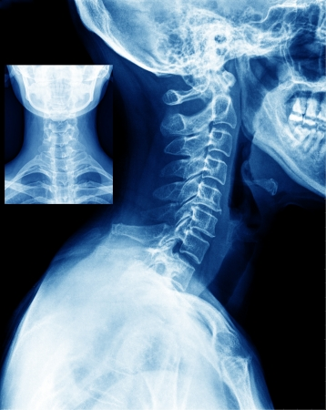 neck X-ray photo