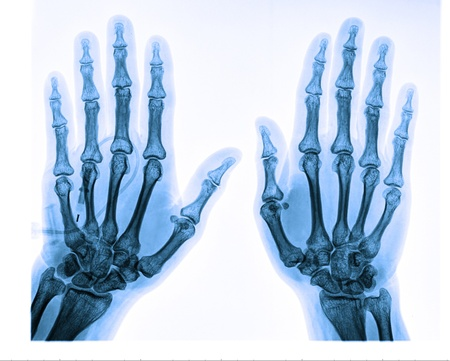 x rays negative: X-ray