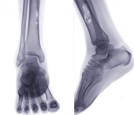 bone cancer: X ray of Bone cancer