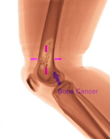 X ray of Bone cancer
