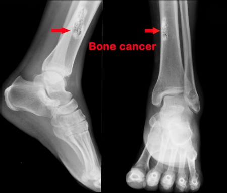 X ray of Bone cancer  photo