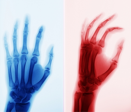 X-ray picture of hand  Stock Photo - 20421600
