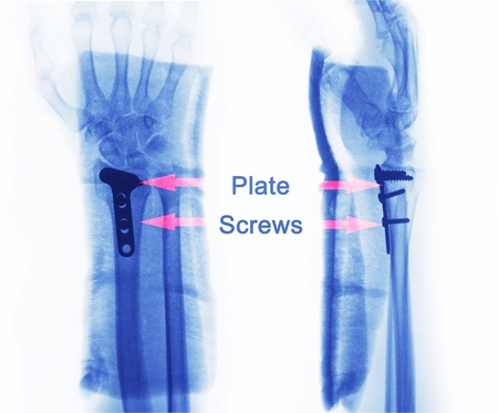 x rays negative: x ray of fractures bone