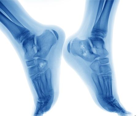 bone cancer: Bone cancer