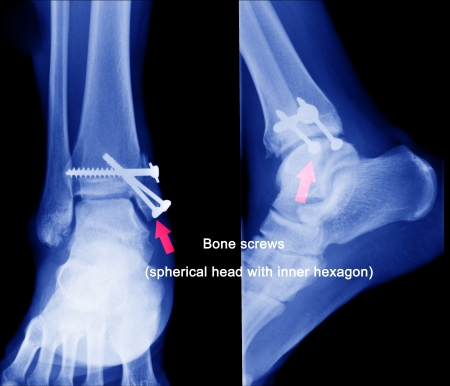 x ray of fractures bone photo