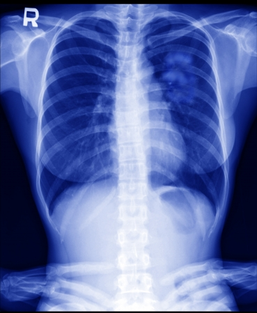 cancer x ray: X ray of Lung cancer in women  Stock Photo