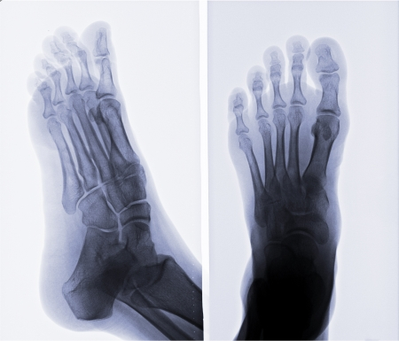 X-ray photo de pied