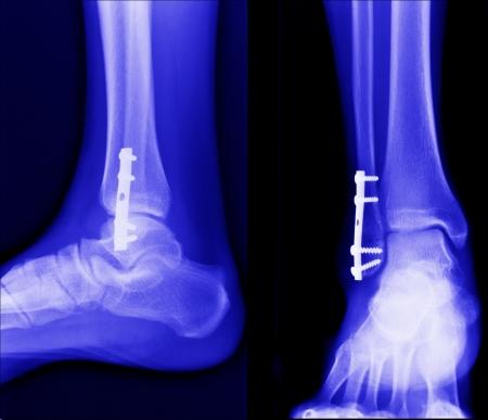 rayon x de fractures osseuses