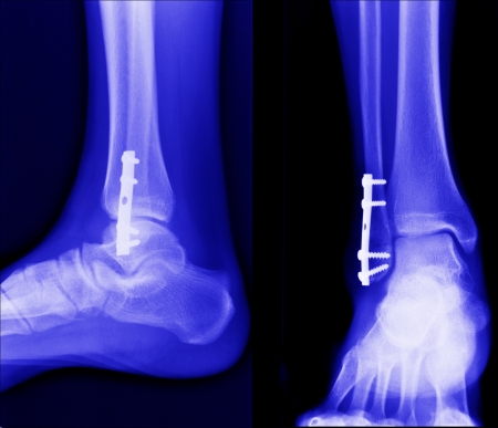 radiogram: x ray of fractures bone