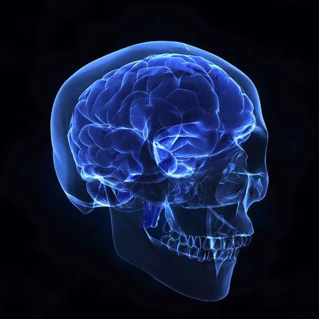 X- ray human brain and skull photo