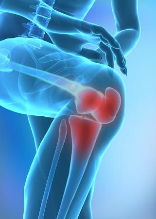 artritis: lesi�n de rodilla