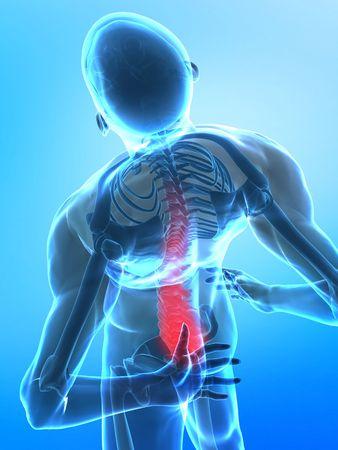 Human backbone in x-ray view Stock Photo - 6150581