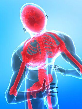 Hombre con dolor en la parte de la columna vertebral - vista de rayos x