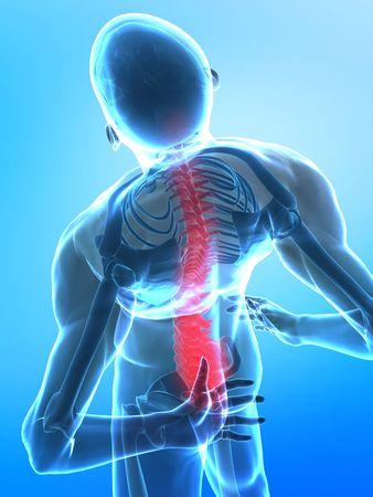 척추 부분 - 엑스레이보기에 통증이있는 남자