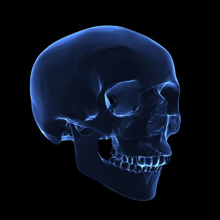X RAY: Isolated human x ray skull on black background - left front view