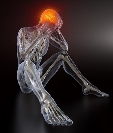 Concept de douleur de tête Banque d'images - 9162860