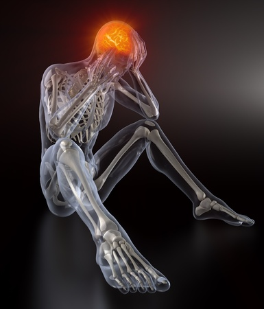 fractura: Concepto de dolor de cabeza