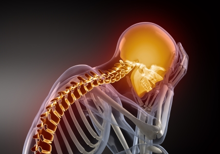 squelette: Concept de douleur de t�te