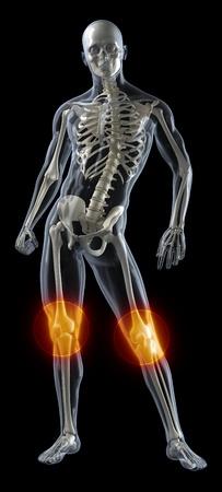 Human Knee Medical Scan Stock Photo - 9162841