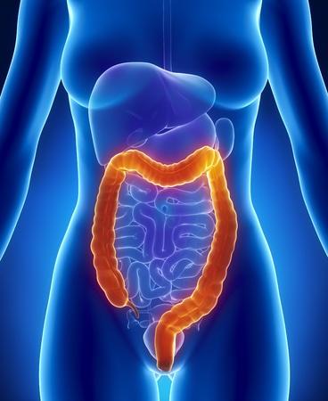colon cancer: Medical concept