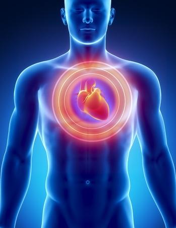hartaanval: Mannelijke anatomie van menselijk hart in x-ray weergave Stockfoto