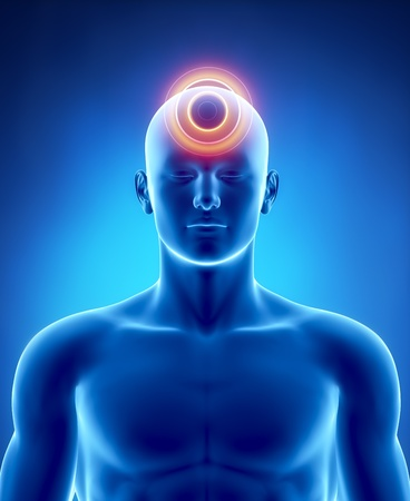 hoofdpijn: Man hoofdpijn migraine concept in de x-ray zicht