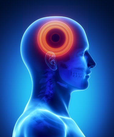 headache: Pain in brain Stock Photo