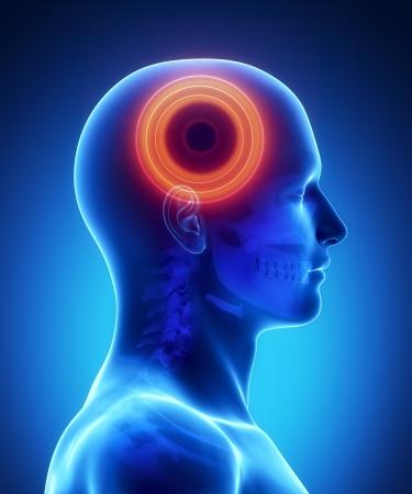 Pijn in de hersenen Stockfoto