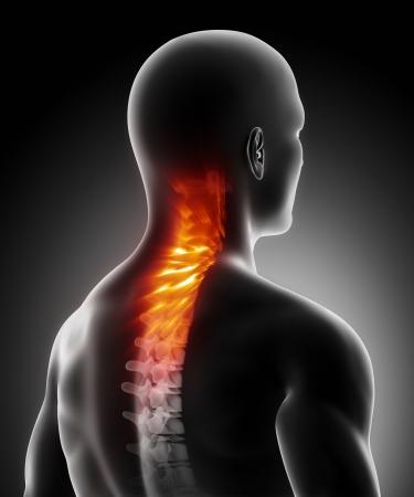 columna vertebral: Dolor en la anatomía de la columna cervical