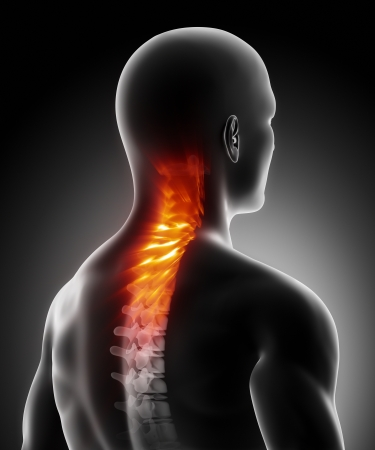 Pain in cervical spine anatomy