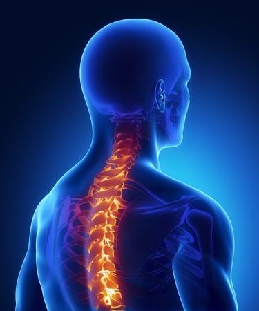 cervicales: Backbone de una lesión en la radiografía