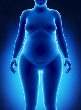 obesidad: Mujer gorda vista anterior Foto de archivo