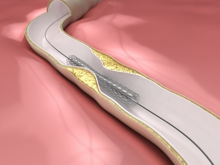 Coronary Angioplasty procedure Stock fotó - 15095828