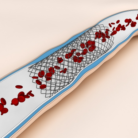 inflated: Coronary Angioplasty procedure - opened blood flow