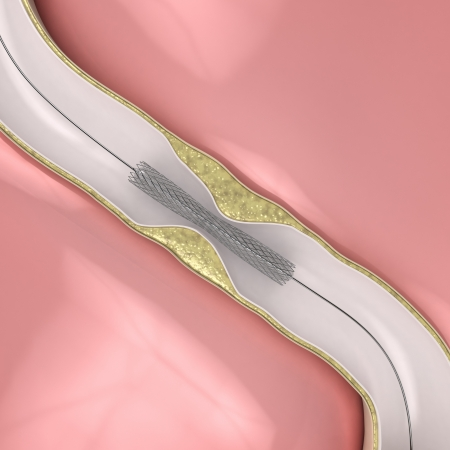 blocking: Coronary Angioplasty procedure - plague blocking blood flow Stock Photo