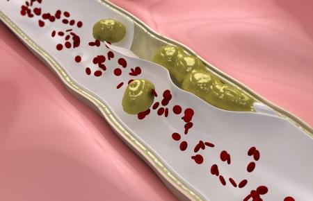 restenosis: Coronary embolus travels through the circulatory system