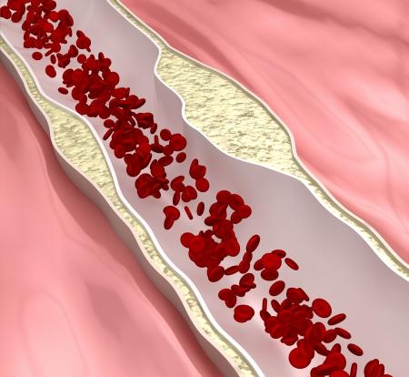 hipertension: Desease aterosclerosis coronaria Foto de archivo