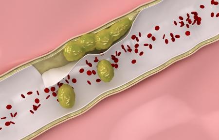 restenosis: Coronary cholesterol  travels through the circulatory system