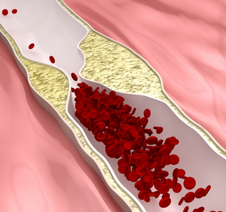 human blood vessel: Atherosclerosis disease - plague blocking blood flow Stock Photo