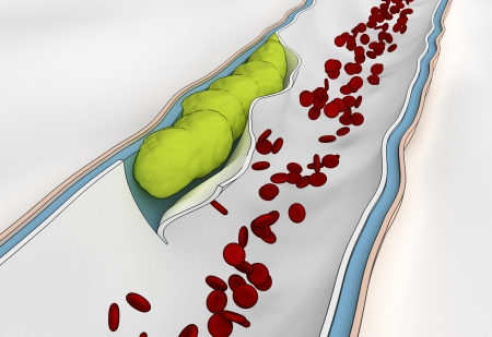 cholesterol: Development of  embolus through the formation of thrombus