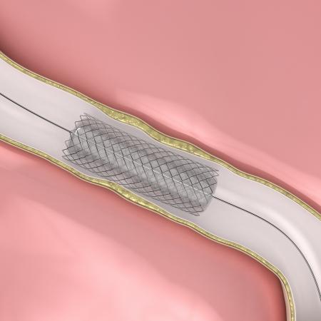 restenosis: Coronary Angioplasty procedure - ballon with stent opening lumen artery