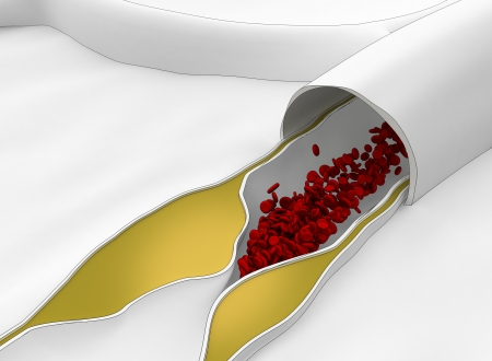 Atherosclerosis disease - plague blocking blood flow Stock Photo - 15095846