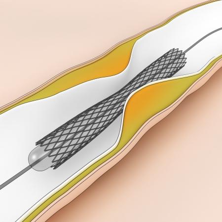restenosis: Coronary Angioplasty procedure - plague blocking blood flow Stock Photo