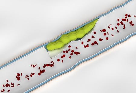 restenosis: Development of  embolus through the formation of thrombus