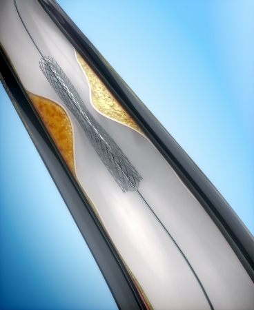 restenosis: Coronary Angioplasty procedure - plague blocking blood flow 1